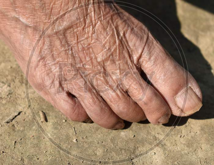 Fair Toe Of An Old Woman, Her Age Is More Than Eighty .