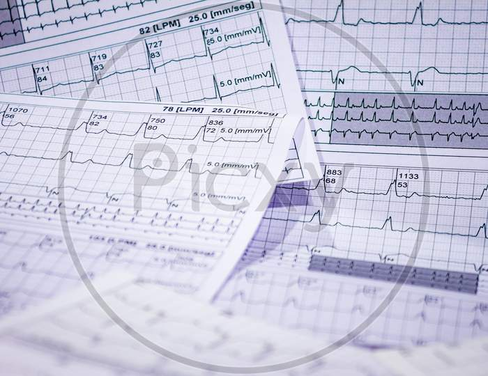 Electrocardiogram Strips With Cardiac Arrhythmias. Acute Myocardial Infarction. Selective Focus On Some Beats. Free Space To Write.